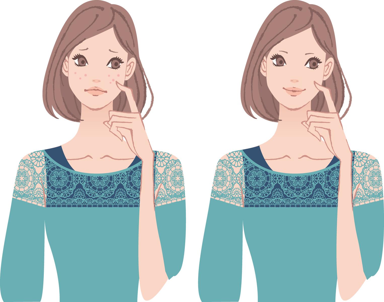 778152 ニキビ用化粧品は、皮膚のバリア機能ををこわす?